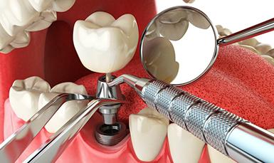 Photo of Обзор современных технологий имплантации зубов
