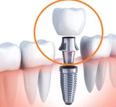 Photo of Как проводится установка зубных имплантов?