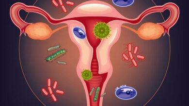 Photo of Бартолинит: опасное воспаление женских половых органов