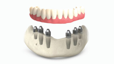 Photo of Имплантации зубов all-on-6: особенности технологии