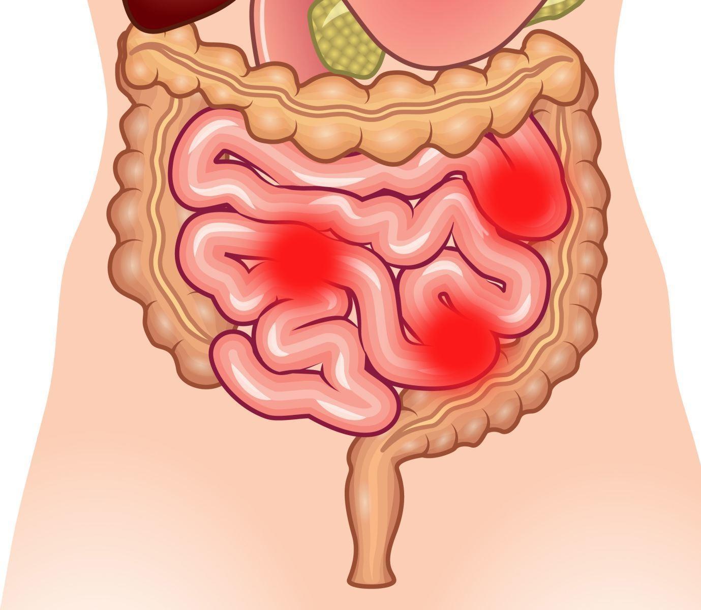 Photo of Болезни тонкого кишечника