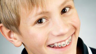 Photo of Какие брекеты для детей лучше ставить?