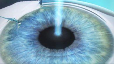 Photo of ФемтоЛасик: самая современная и уникальная методика лазерной коррекции зрения
