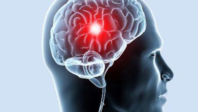 Photo of Болезни сосудов: причины, симптомы, осмотр и диагностика