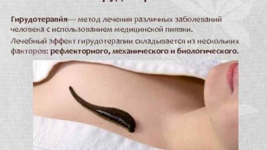 Photo of Как лечить острый гастрит желудка