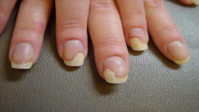 Photo of Онихолизис ногтей: эффективные методы лечения