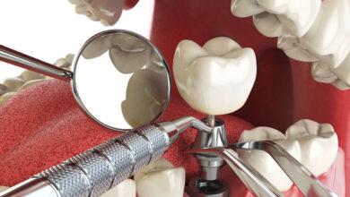 Photo of Имплантация зубов пошаговое описание процедуры