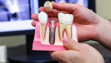 Photo of Какие варианты имплантации зубов сегодня существуют?