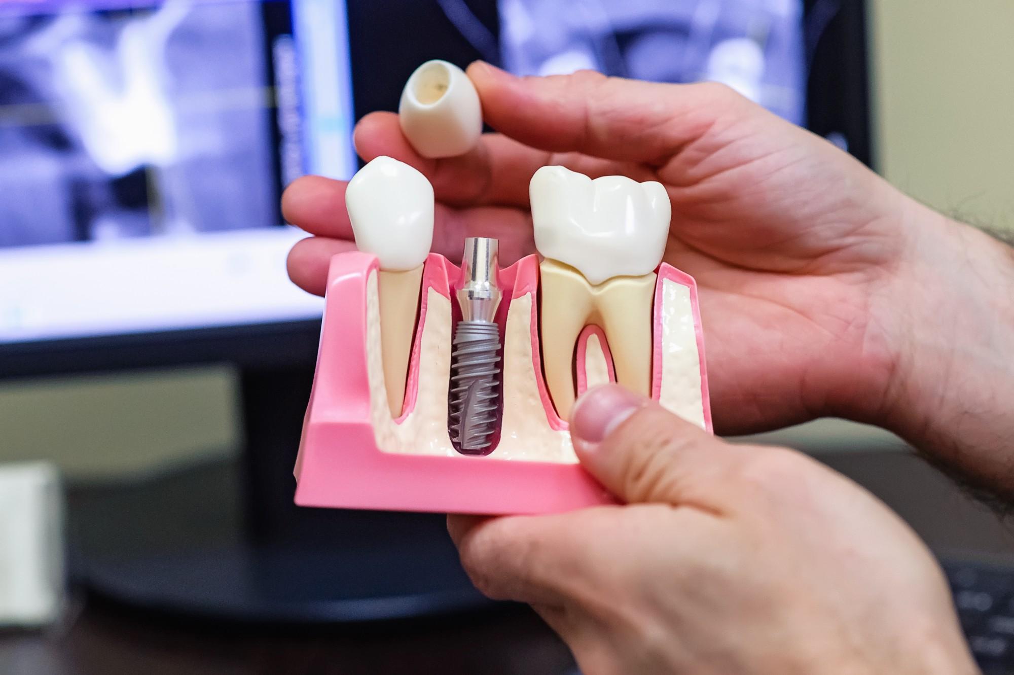 Photo of Как подготовиться к имплантации зубов?