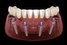 Photo of Когда нужно делать имплантацию зубов?