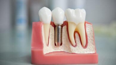 Photo of Современные технологии в имплантации зубов