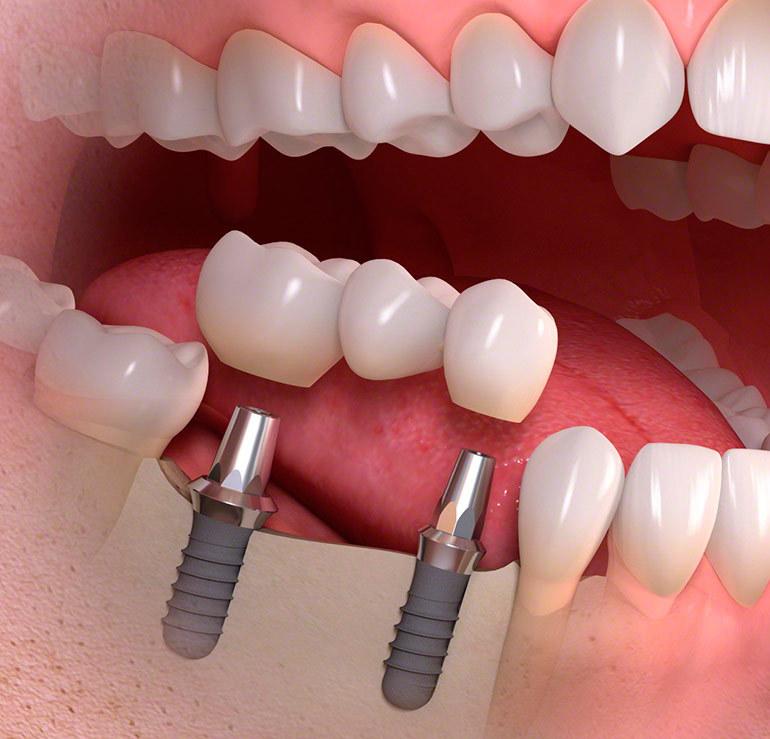 Photo of Виды имплантации зубов