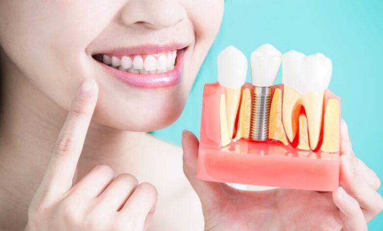 Photo of Имплантация зубов: наилучший способ их восстановления