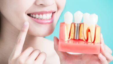 Photo of Для чего нужна имплантация зубов?