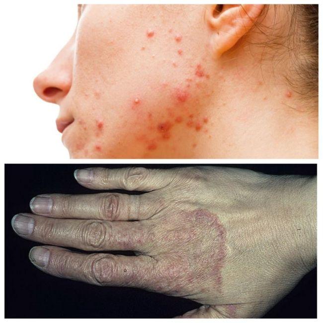 Photo of Паразитарные болезни кожи
