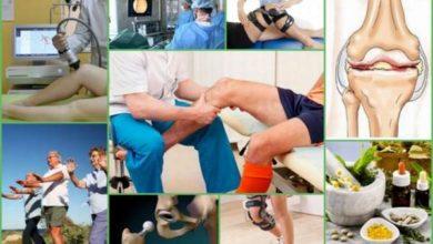 Photo of Эффективные методы лечения остеоартроза суставов