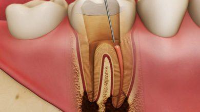 Photo of Особенности лечения пульпита