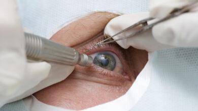 Photo of Обзор методов лечения катаракты глаз