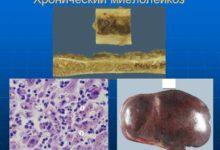 Photo of Как производится полное обследование при подозрении на хронический миелолейкоз?
