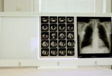Photo of Негатоскоп на четыре рентгеновских снимка: достоинства модели