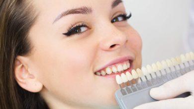 Photo of Способы отбеливания зубов в стоматологии