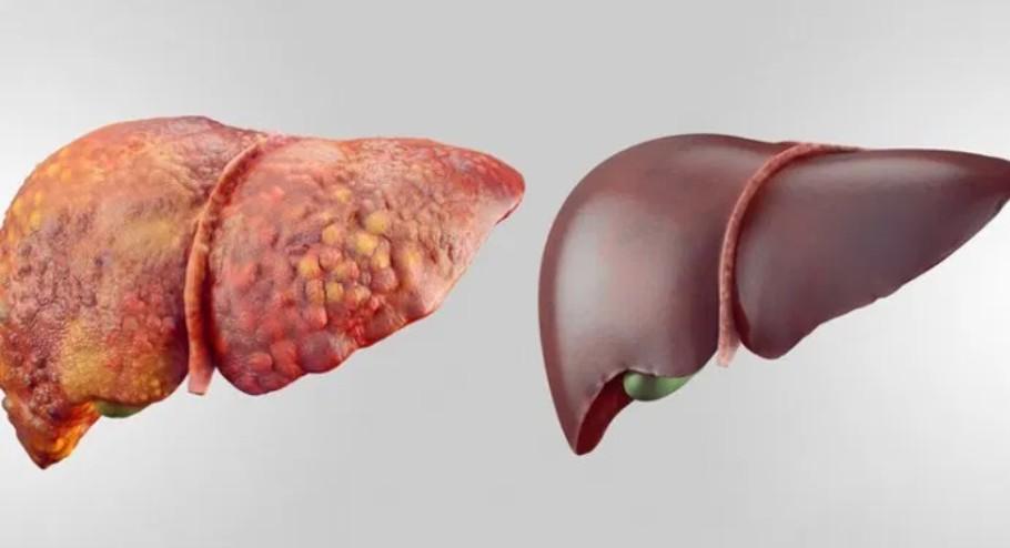 Photo of Жировая болезнь печени: причины, симптомы и особенности лечения
