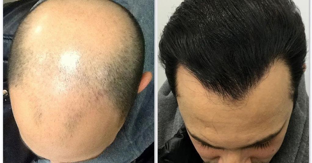 Photo of Пересадка волос: лучшее решение проблемы облысения