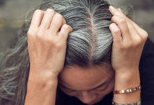 Photo of Почему седеют волосы в молодом возрасте?