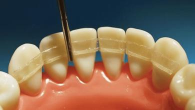 Photo of Шинирование зубов