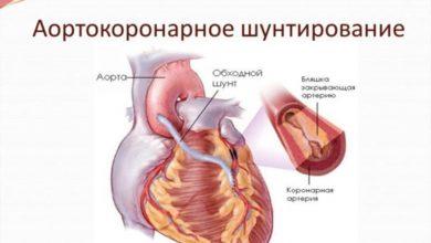 Photo of Аортокоронарное шунтирование в Германии: основной способ лечения ИБС