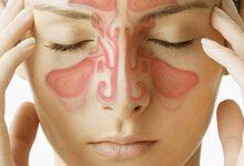 Photo of Способы лечения хронического синусита