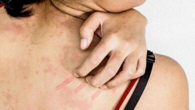 Photo of Причины возникновения кожной сыпи