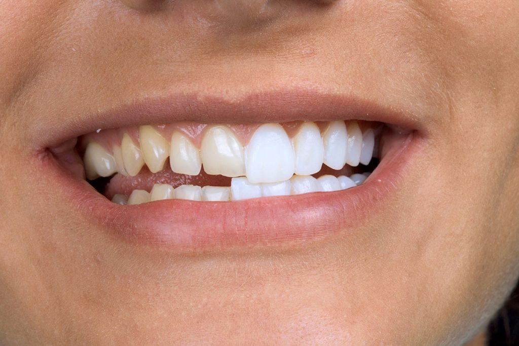 Photo of Виды зубных виниров в стоматологии