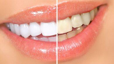 Photo of Отбеливание зубов: распространенная процедура среди пациентов стоматологических клиник